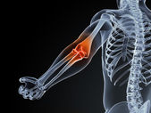 Medical illustration of an elbow bursitis — Stock Photo