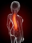 Anatomy illustration - painful back — Stock Photo