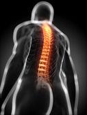 解剖图-背疼 — 图库照片