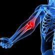 Painful elbow illustration — Stock Photo