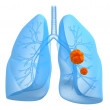 Lung cancer — Stock Photo #12443985