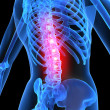 Stock Photo: Inflamed spine