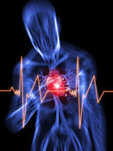 Heart attack — Stockfoto