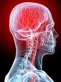 Migraine — Stock Photo