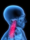Inflamed neck — Stock Photo