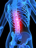 Inflamed spine — Stock Photo