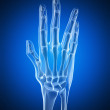 An arthritic hand - Foto Stock