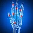 An arthritic hand - Stock Photo