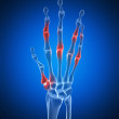 An arthritic hand — Stockfoto