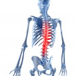 A painful back — Stock Photo