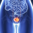 Stock Photo: Bladder cancer