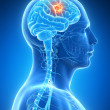 Stock Photo: Brain tumor
