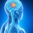 Brain tumor — Stock Photo