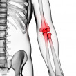 Stockfoto: Painful elbow