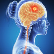 Brain cancer — Stock Photo