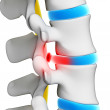 Herniated disk - Stock Photo