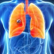 Stock Photo: Male lung - cancer