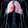 Male lung - cancer — Stock Photo #21059463