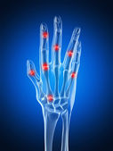 An arthritic hand — Foto de Stock