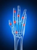 Una mano artritico — Foto Stock