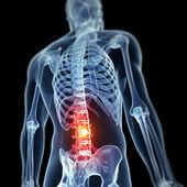 背痛 — 图库照片