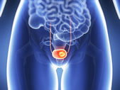 Bladder cancer — Stock Photo