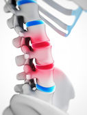 Intervertebral disks — Stock Photo