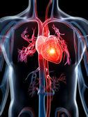 сердечный приступ — Стоковое фото