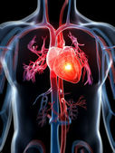 Atak serca — Zdjęcie stockowe