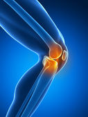 Painful knee — Stock Photo