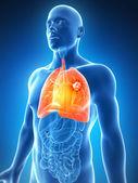 Le mâle poumon - cancer — Photo