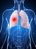 Mâle poumon - cancer — Photo