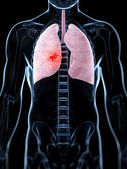 Male lung - cancer — Stock Photo