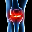 Painful knee — Stock Photo #21065767