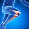 Stock Photo: Painful knee