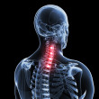 A painful neck — Stock Photo