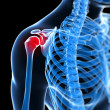 Painful shoulder — Stock Photo