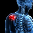 Stock Photo: Painful shoulder