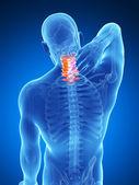 痛苦的脖子 — 图库照片