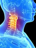 Painful neck — Stock Photo