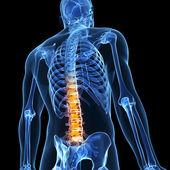 背疼 — 图库照片