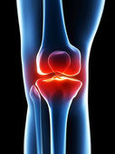 Painful knee — Stock Photo
