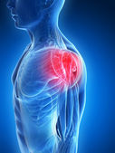 Painful shoulder muscles — Stock Photo