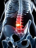 Herniated disk — Stock Photo