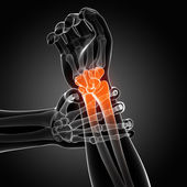 Painful wrist — Foto Stock