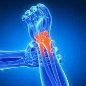 Painful wrist — Stockfoto