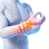 Painful wrist — Stock Photo