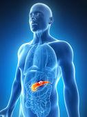 Mannelijke alvleesklier - kanker — Stockfoto