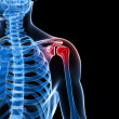 painful shoulder — Lizenzfreies Foto