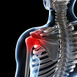 Painful shoulder - Foto de Stock